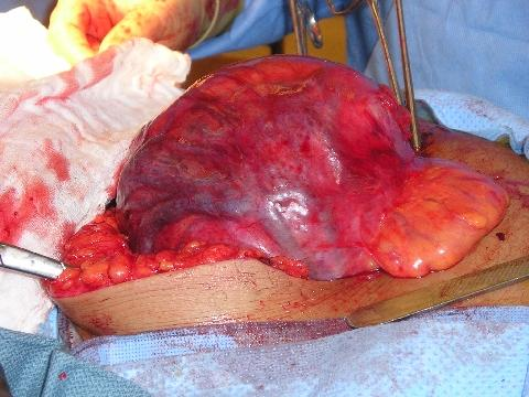 Adhesions From Surgery. At surgery, her bowel was