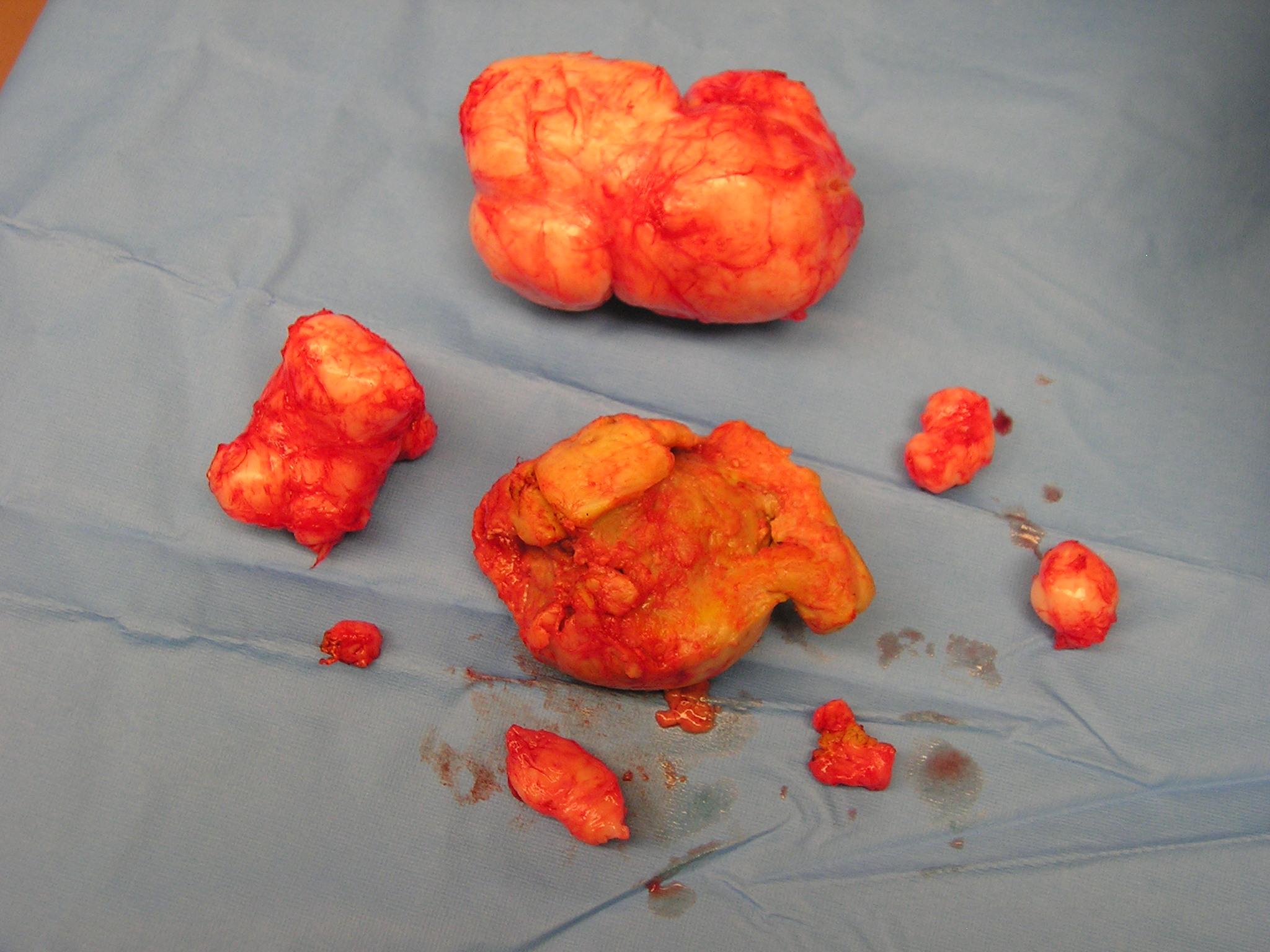 Treating Fibroids Uterus Naturally